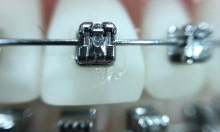 Le traitement d'orthodontie