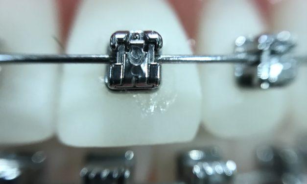 Le traitement d'orthodontie